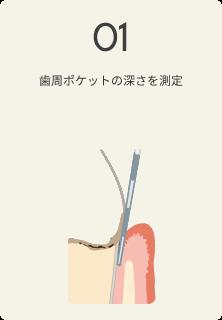 さいわいデンタルクリニック 歯周病の治療の流れ 歯周ポケットの深さを測定