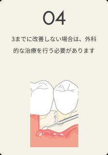 さいわいデンタルクリニック 歯周病の治療の流れ 改善しない場合は外科的な治療を行う