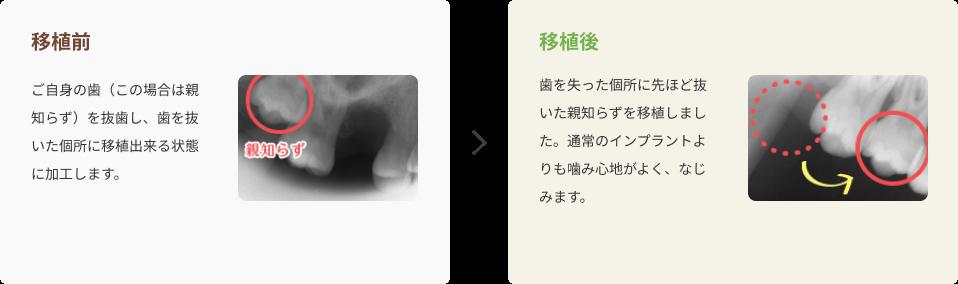 さいわいデンタルクリニック 歯の移植・再植 治療の流れ