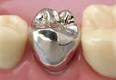 さいわいデンタルクリニック かぶせもの・つめもの 銀歯