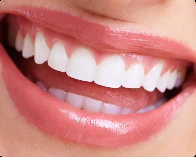 さいわいデンタルクリニック 歯垢のつきにくい長持ちするさし歯製作