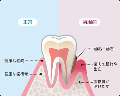 さいわいデンタルクリニック 歯茎が腫れた・痩せた 歯周病
