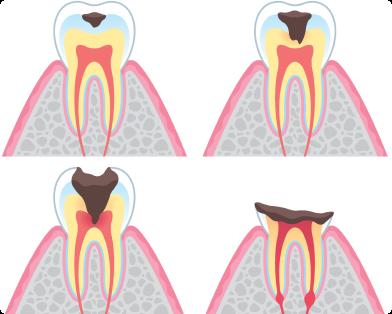 さいわいデンタルクリニック 治療した歯が痛い